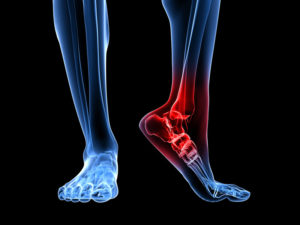 Ладьевидная кость ноги и её травмы