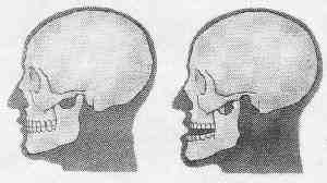Как возникают вывихи челюсти