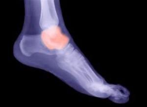 Причины перелома таранной кости и методы его лечения