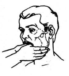 Лечение вывиха нижней челюсти