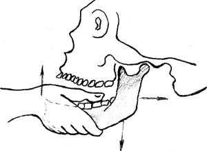 Вправляем передний вывих челюсти