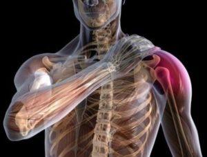Признаки и симптомы вывиха плечевого сустава