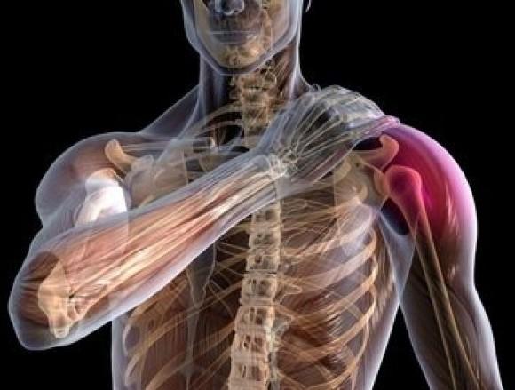 Вывих плечевого сустава лечение и реабилитация вело средства для суставов