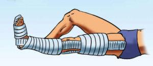 Как правильно наложить шину при разных типах переломов