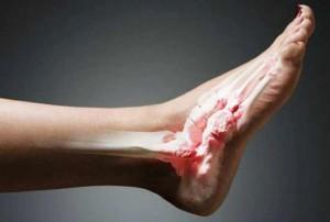 Симптомы вывиха голеностопа