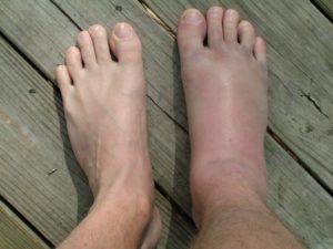 Типичный симптом вывиха голеностопа
