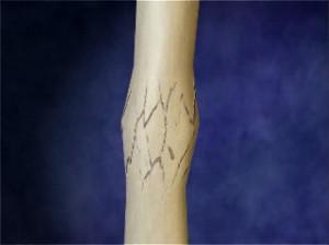Причины возникновения костной мозоли